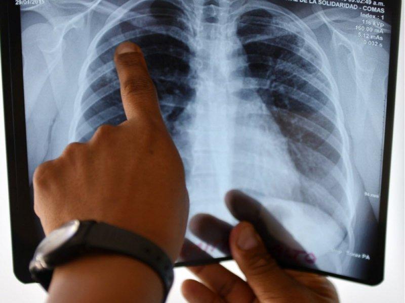 Одобрена таблетка для лечения 90% случаев резистентного туберкулеза