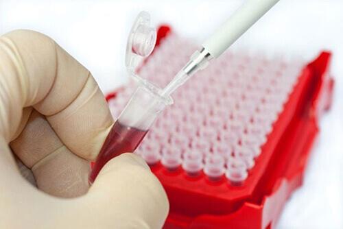 Иммунофенотипирование крови