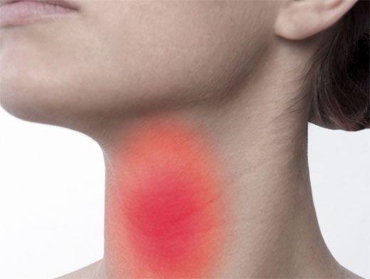 Пробки в горле: как лечить тонзиллит?