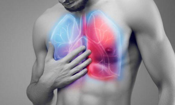 Что такое пневмония и как можно заразиться этим недугом