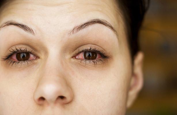 Что такое глазной грипп и чем он опасен