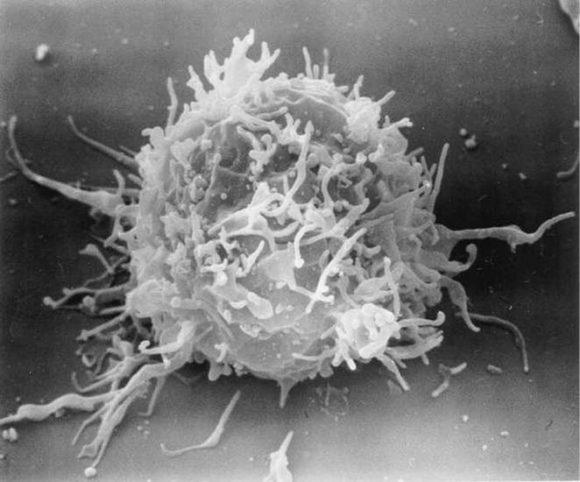 Исследователи из США обнаружили механизм, с помощью которого некоторые иммунные клетки человека могут отражать атаку ВИЧ