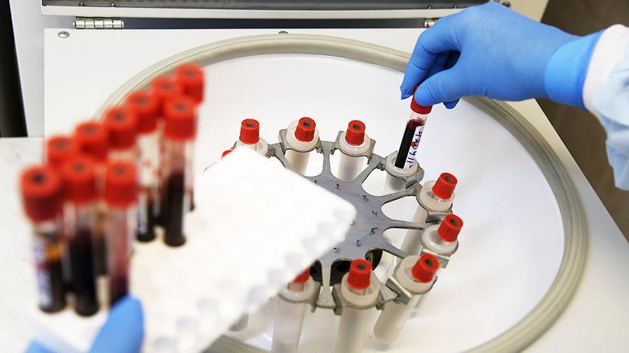 Ученые нашли новый метод лечения ВИЧ
