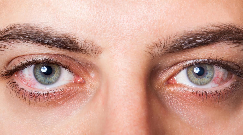 Два наиболее частых ранних симптома заражения коронавирусом