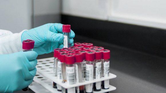 Сдать анализ на выявление коронавируса