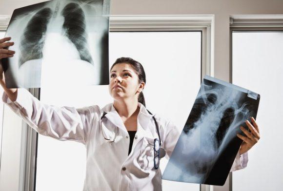 Как выглядят легкие пациента с COVID-19 и курильщика: шокирующие снимки