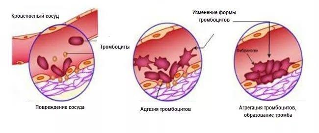 Низкий уровень тромбоцитов в крови – причины и последствия