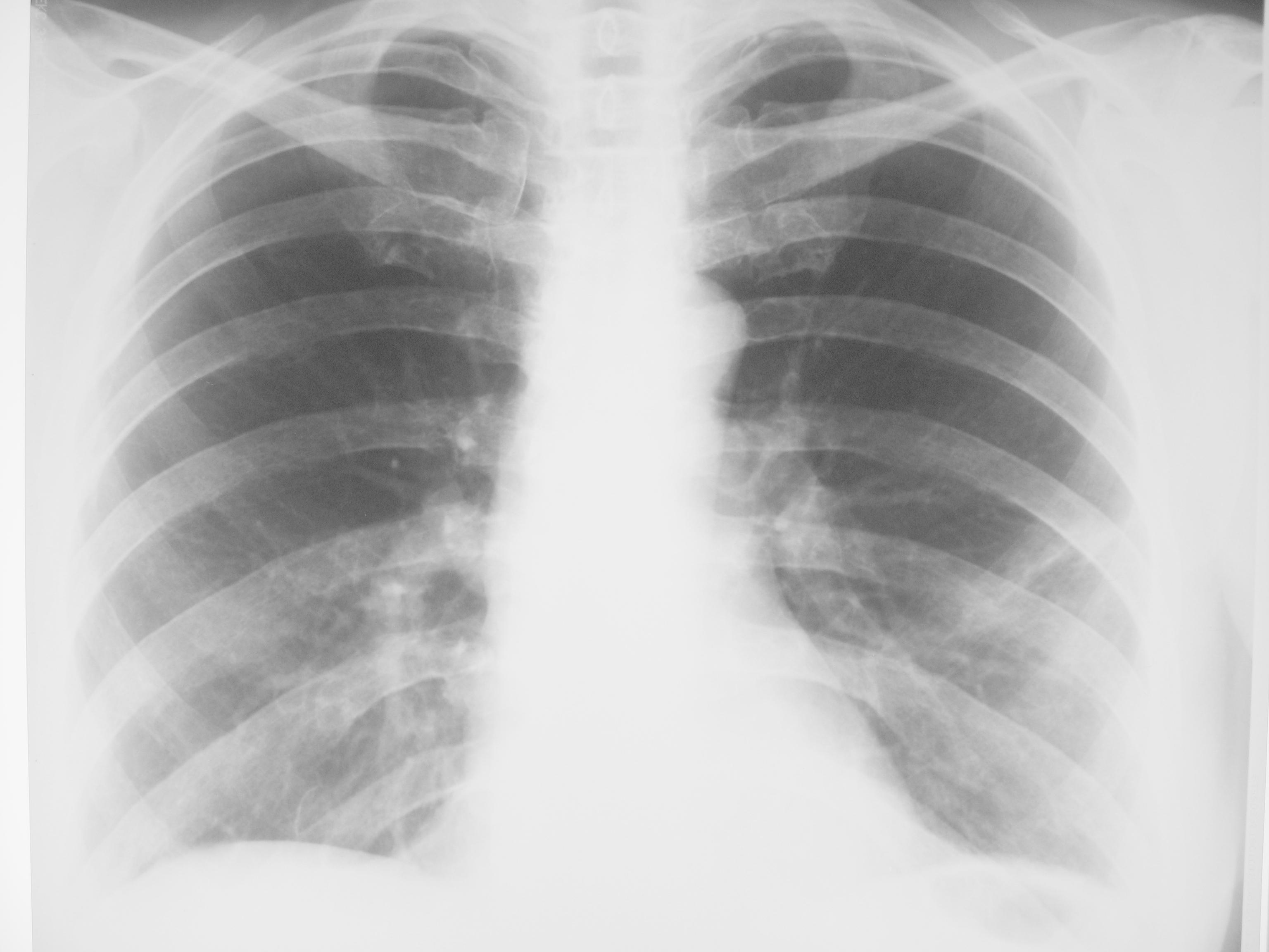 Фиброз легких после пневмонии – симптомы, как лечить?