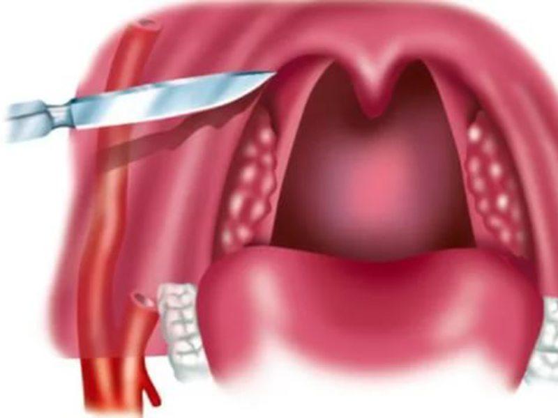 Как лечить острый тонзиллит?