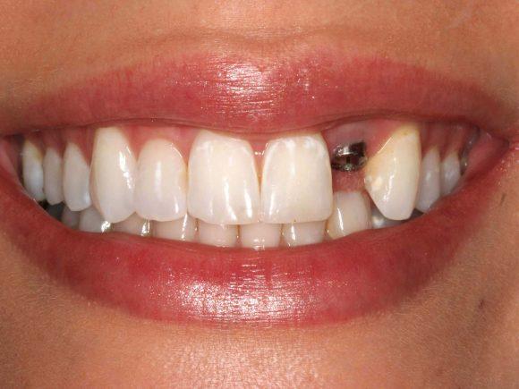 Восстановление зубного ряд с помощью импланта