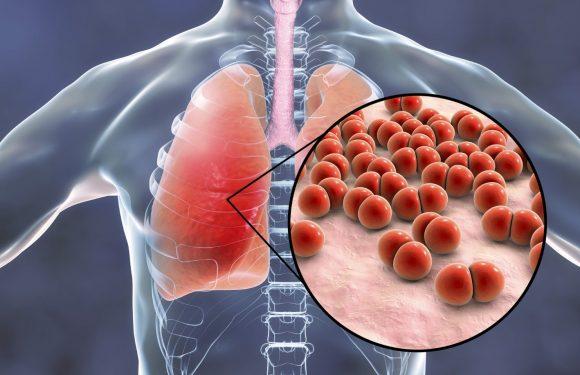 Коварная и опасная: как понять, что у вас пневмония