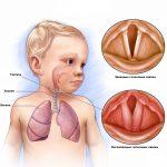 Ларингит: симптомы, лечение, профилактика