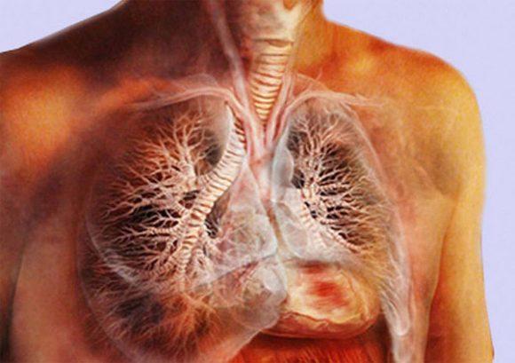 Как распознать туберкулез