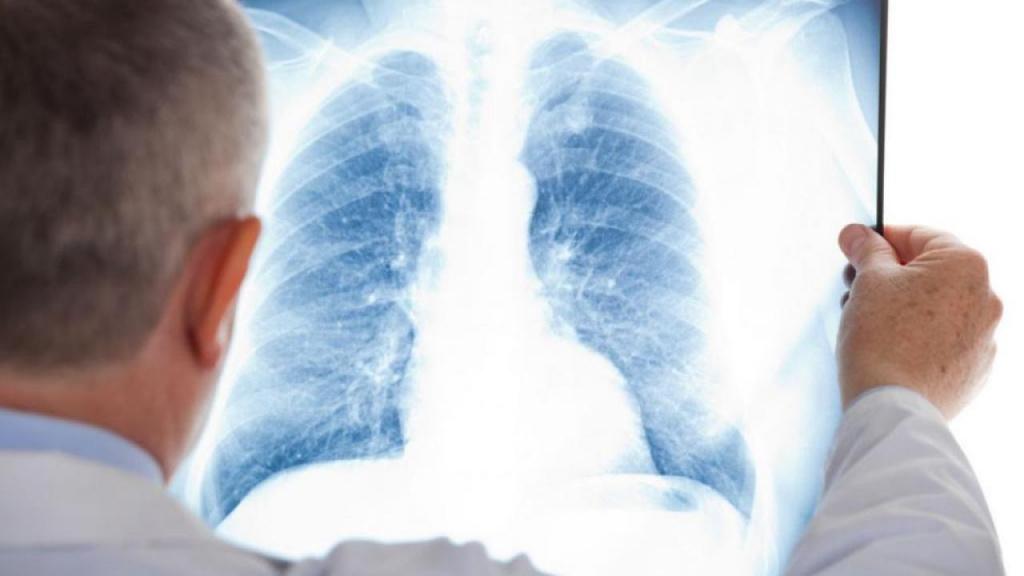 Фиброз легких: причины, симптомы, тактика лечения