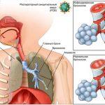 Бронхиолит: описание симптомов, принципов лечения