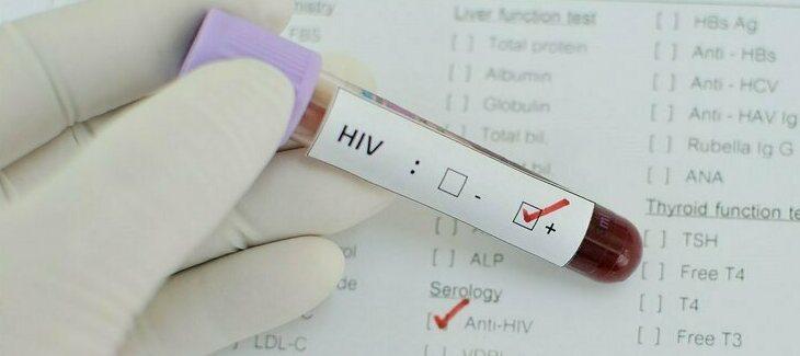 Как проводится анализ на ВИЧ