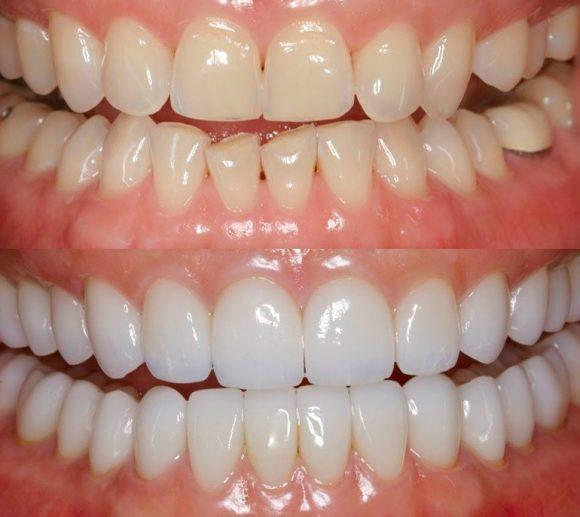 Качественная реставрация зубов