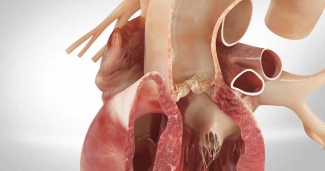 Митральный стеноз – как распознать и лечить патологию митрального клапана?