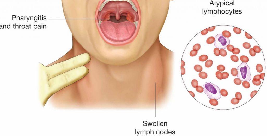 Пути распространения инфекции