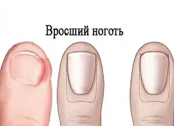 Вросший ноготь – болезнь, а не маленькое неудобство