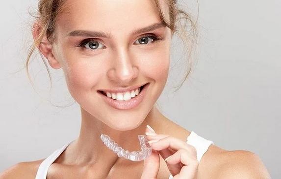 Применение элайнеров для выравнивания зубов